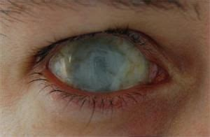 blind eye contacts eye contacts below dead eye scleral lenses