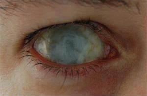 Zombie Eye Contacts | Below: Dead eye Scleral lenses ...