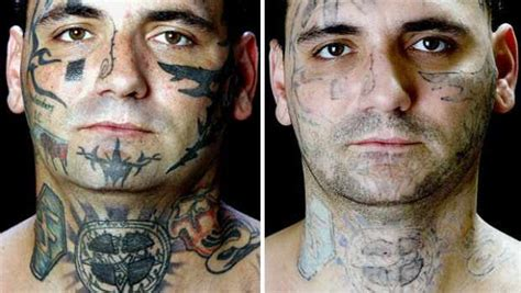 tattoo removal    pictures inkdoneright