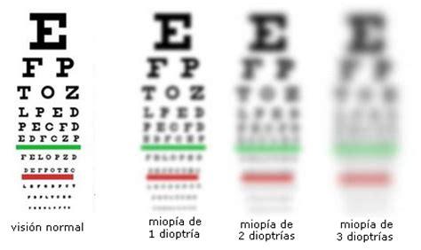 si e t ision miopìa iveo instituto venezolano de oftalmología