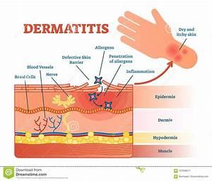 Dermatitis Flat Vector Illustration Diagram With Skin
