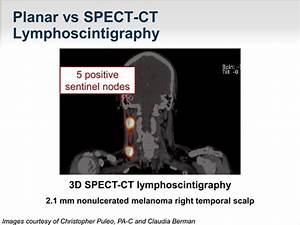 Latest Developments On Optimal Lymph Node Mapping For
