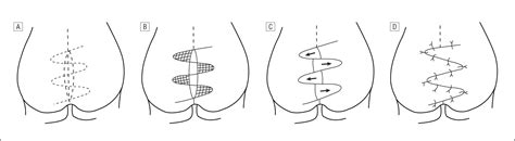 pilonidal cyst diagram crossed triangular flaps technique for surgical treatment