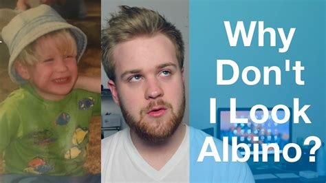 Why I Dont Look Albino But Do Have Albinism Youtube