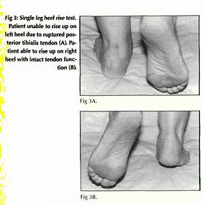 THE DIFFICULT DIAGNOSIS OF POSTERIOR TIBIALIS TENDON ...