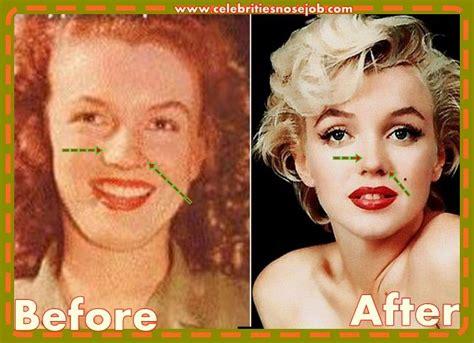 marilyn monroe cosmetic surgery nose job