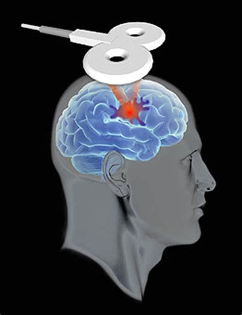 Per Raumluftanalyse Schadstoffe Identifizieren by Neuroenhancement F 252 Rs Milit 228 R Stromstimulation Als