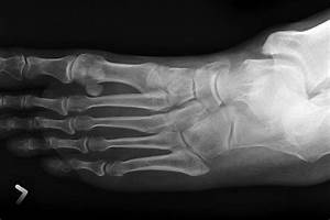 Common Conservatively Managed Fractures