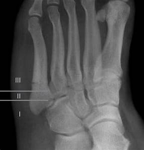 File Jones Fracture  Healing Zones According To Polzer Jpg