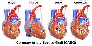 Did You Know These Facts About Heart Bypass Surgery