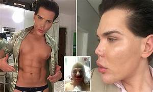 'Ken doll' Rodrigo Alves can't find doctor willing to ...