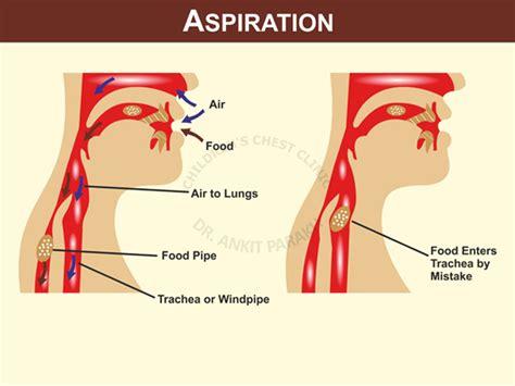 aspiration cuisine dr ankit parakh india s leading pediatric pulmonologist