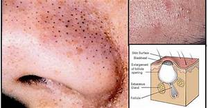 7 Natural Remedies For Blackheads That Take 15 Minutes Or