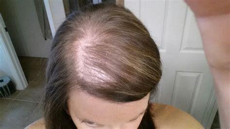 Alopecia white hair growing back