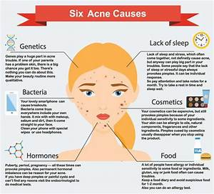 All About Acne  Types  Causes  Signs  U0026 Symptoms  Treatment