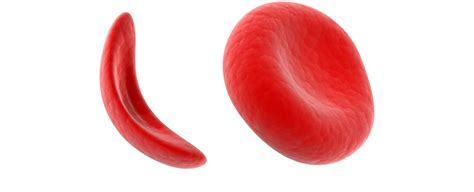 Sickle Cell Disease Project For Kings College Hospital. Places Who Buy Junk Cars Smtp Server Services. Santa Monica Plastic Surgeons. Online School Nurse Certification Programs. The Best Mapping Software Bed Bugs Fumigation. Names Of Allergy Medications. Cheapest Dedicated Server Usa. Company Collaboration Tools Bic Custom Pens. Virtual Secretary Service Cefalu Italy Hotels