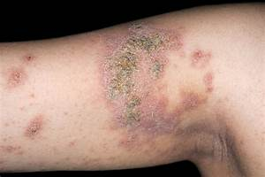 Prevalence of Atopic Dermatitis 7.3% in U.S. Adults - The Clinical Advisor Dermatitis