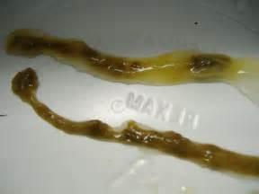 Human Stool Worm Intestinal Parasites