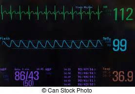 Female Pediatric Blood Pressure Chart Vital Signs Monitor In Hospital Infirmary Emergency Room