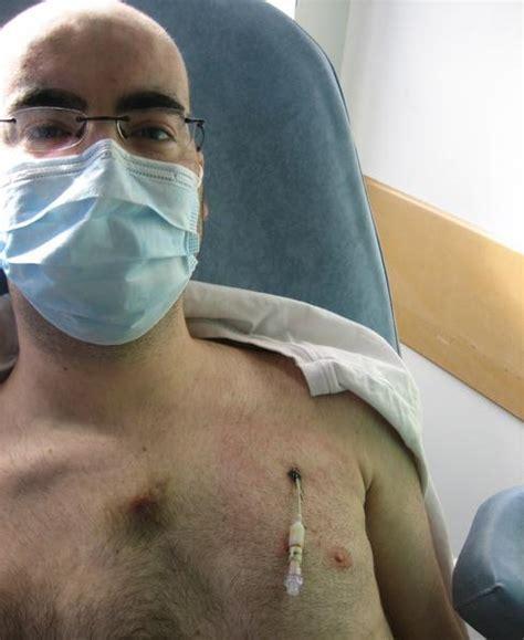 chambre implantable chimio catheter adios se battre contre la leucemie par marco