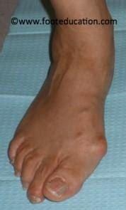disorders   great toe musculoskeletal medicine