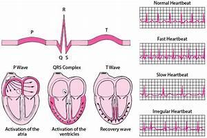 Heart Rate Monitor Irregular Heartbeat
