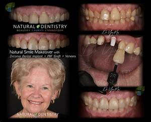 Smile Makeover  Zirconia Implant  U0026 Veneers