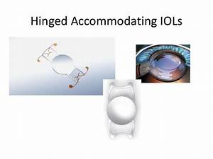 Accommodating IOLs