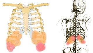 schmerzen rippen links schmerzende rippen und r 252 cken hondrocream