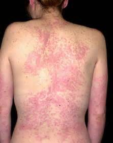 ... and treatment of urticaria, hives, urticarial rash and allergy rashes Hives