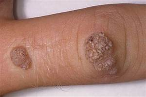 How To Get Rid Of Warts Fast
