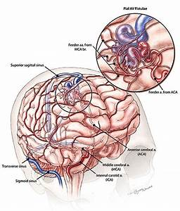 Arteriovenous Malformations And Vein Of Galen Malformations
