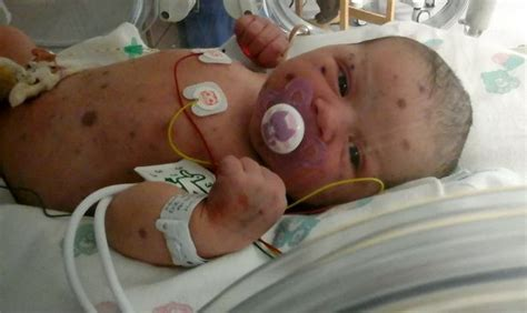 what is the rarest form of leukemia baby born with rare blueberry muffin cancer makes