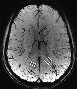 Mri Shows  U0026 39 Brain Scars U0026 39  In Military Personnel With Blast