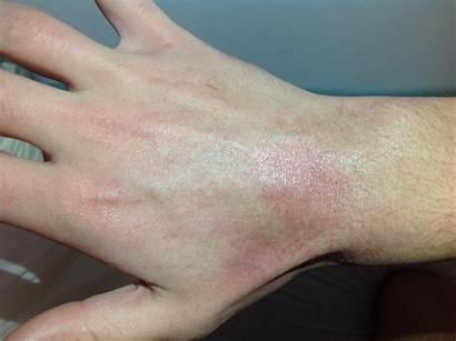 Hautausschlag Den Achseln Ausschlag Weiter Unter Als