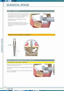 Cortex Dental Implants Surgical Manual By Cortex Dental