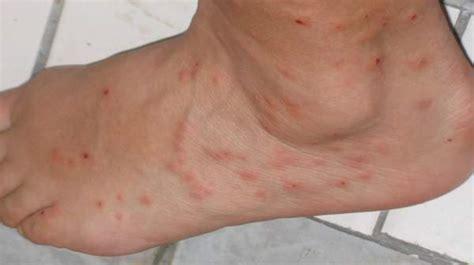 Flea Bites Images Identifying Insect Bites Stings