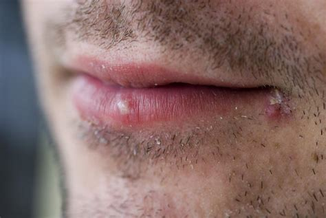 I Have Herpes Simplex 1. What Does Herpes......like