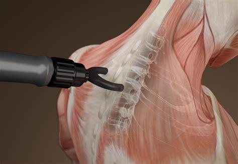 behandeling lage rugpijn