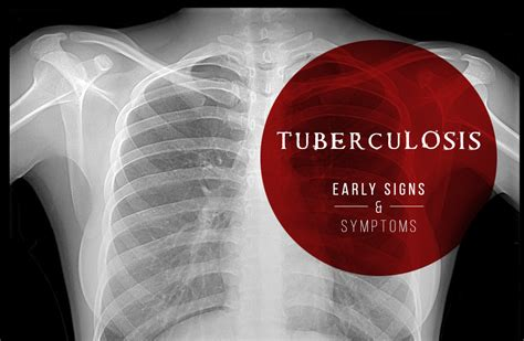 Tuberculosis Early Signs And Symptoms  The Generics. Winston Salem State University Admissions. Cleaning Services Katy Tx Mount Baldy Skiing. G E Information Services Best Crew Cab Trucks. High Blood Pressure Erectile Dysfunction. Lower Interest Rate On Home Loan. Peru State College Nebraska Post Masters Dnp. Home Made Carbon Filter Advance Tax Solutions. Camden National Bank Mortgage Rates