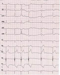 Ecg Showing Atrial Fibrillation And Lvh And A Gross