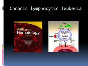Chronic Lymphocytic Leukemia  Menopause Chronic lymphocytic leukemia (CLL)