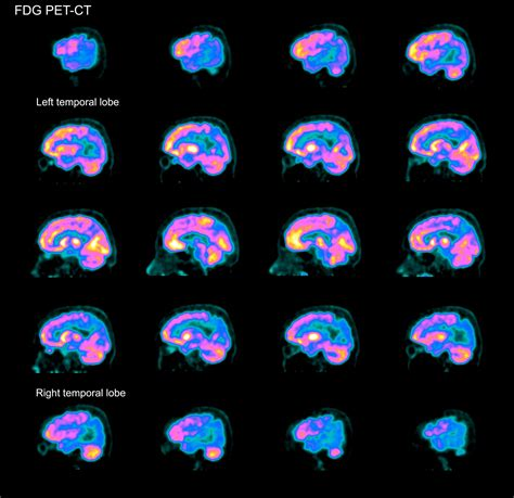 Blood Test Detects Alzheimer's 20 Years Before Memory Loss ...