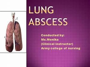 Lung Abscess Ppt