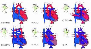 Illustration Of Heart Defects  A  Normal Heart  B  Atrial