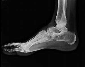 Dorsal avulsion fracture of the navicular bone | Image ...