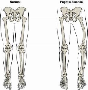 Bone Structure  U2013 Anatomy  U0026 Physiology