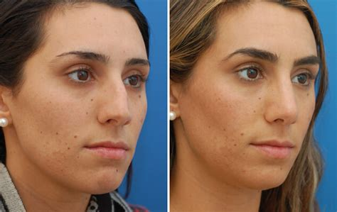 rhinoplasty nyc nose surgery septoplasty