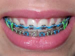 Cute Braces Colors