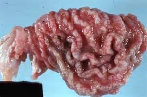 Gastritis, Hypertrophic (Menetrier Disease) Gastritis
